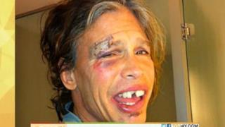 Steven Tyler, la foto e le dichiarazioni dopo la caduta (VIDEO)