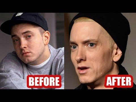 Eminem è dimagrito e ha perso quasi 30 chili