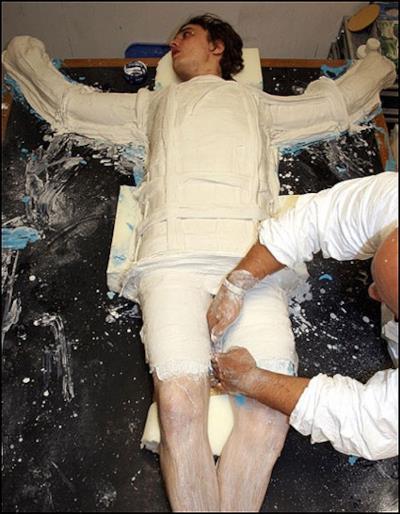 Pete Doherty coperto di gesso