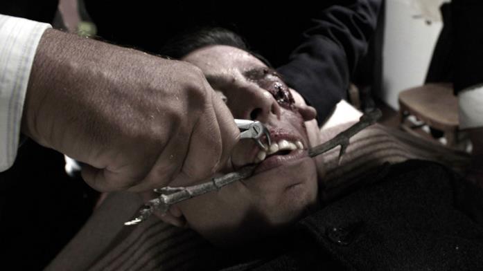 La scena in cui vengono tolti i denti a Emilio nel film Il signor Diavolo