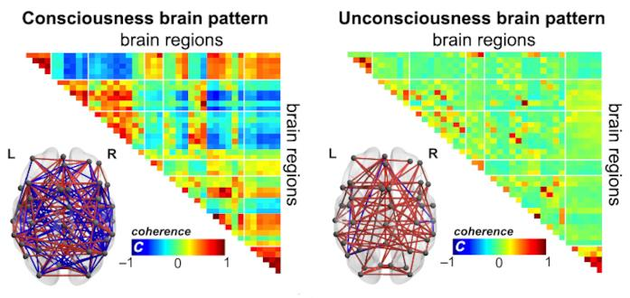 Un'immagine raffigurante i differenti modelli di coscienza cerebrale