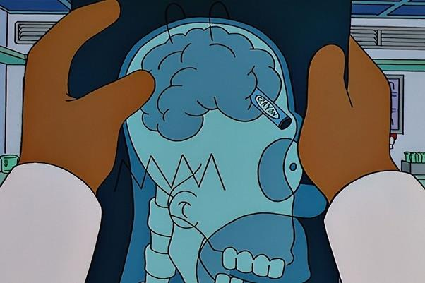 La radiografia con il pastello nel cervello di Homer