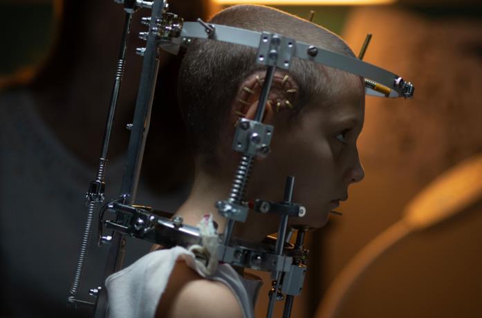 Alexia da bambina con l'impianto sopra l'orecchio